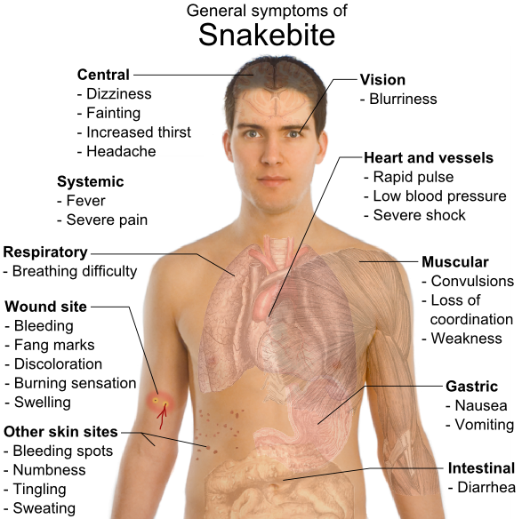 Snakebite_symptoms