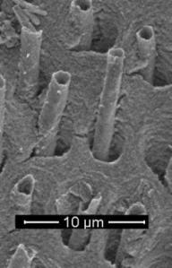 tooth-tubules